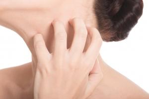 汗によるかゆみを緩和する方法5選